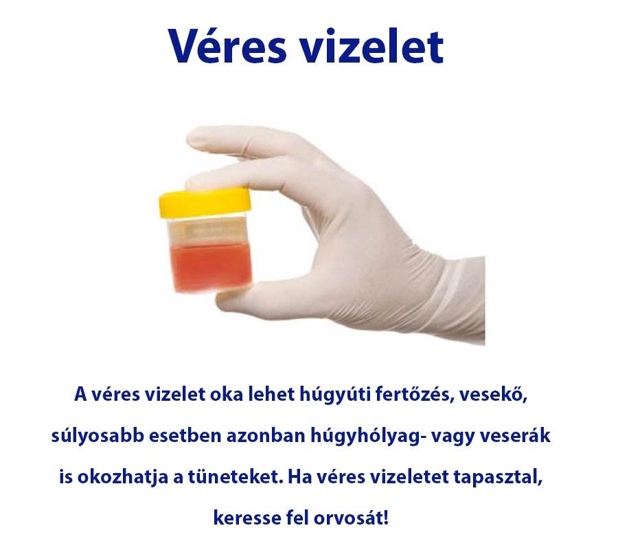 Lehet- e vér a vizeletben a vizeletben)